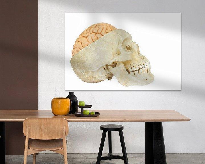 Sfeerimpressie: Menselijke schedel met hersenen van Ben Schonewille