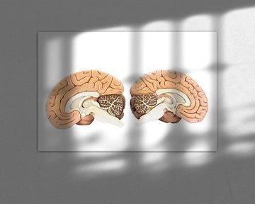 Zwei Hälften des menschlichen Gehirns von Ben Schonewille